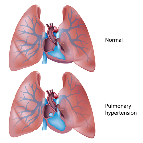 Liminal Biosciences's PBI-4050 Reduces Pulmonary Hypertension, Preclinical Data Show