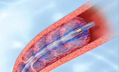 EkoSonic endovascular system helps pulmonary hypertension