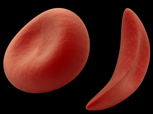 Researchers Suggest New Treatment Guidelines For Treating Pulmonary Hypertension Due to Sickle Cell Disease