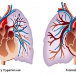 New Survey Finds People With Pulmonary Hypertension Face Serious Health, Social And Financial Impacts