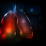 Lung Disease Inadequately Assessed by FVC in PH-Scleroderma Patients