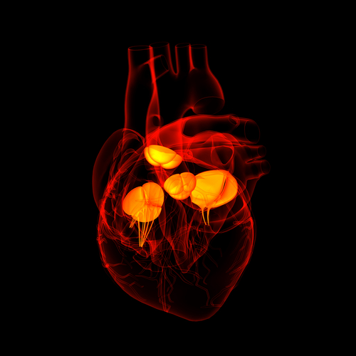 Pulmonary Arterial Hypertension Patients With Congenital Heart Disease Experience Poor Quality of Life Scores