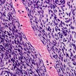 Pulmonary Arterial Hypertension Study Targets Abnormal Smooth Muscle Cell Growth