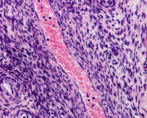 abnormal Smooth Muscle Cell growth in PAH