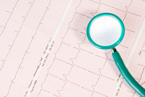 Cardiac Arrhythmias Deadly for Pulmonary Arterial Hypertension Patients