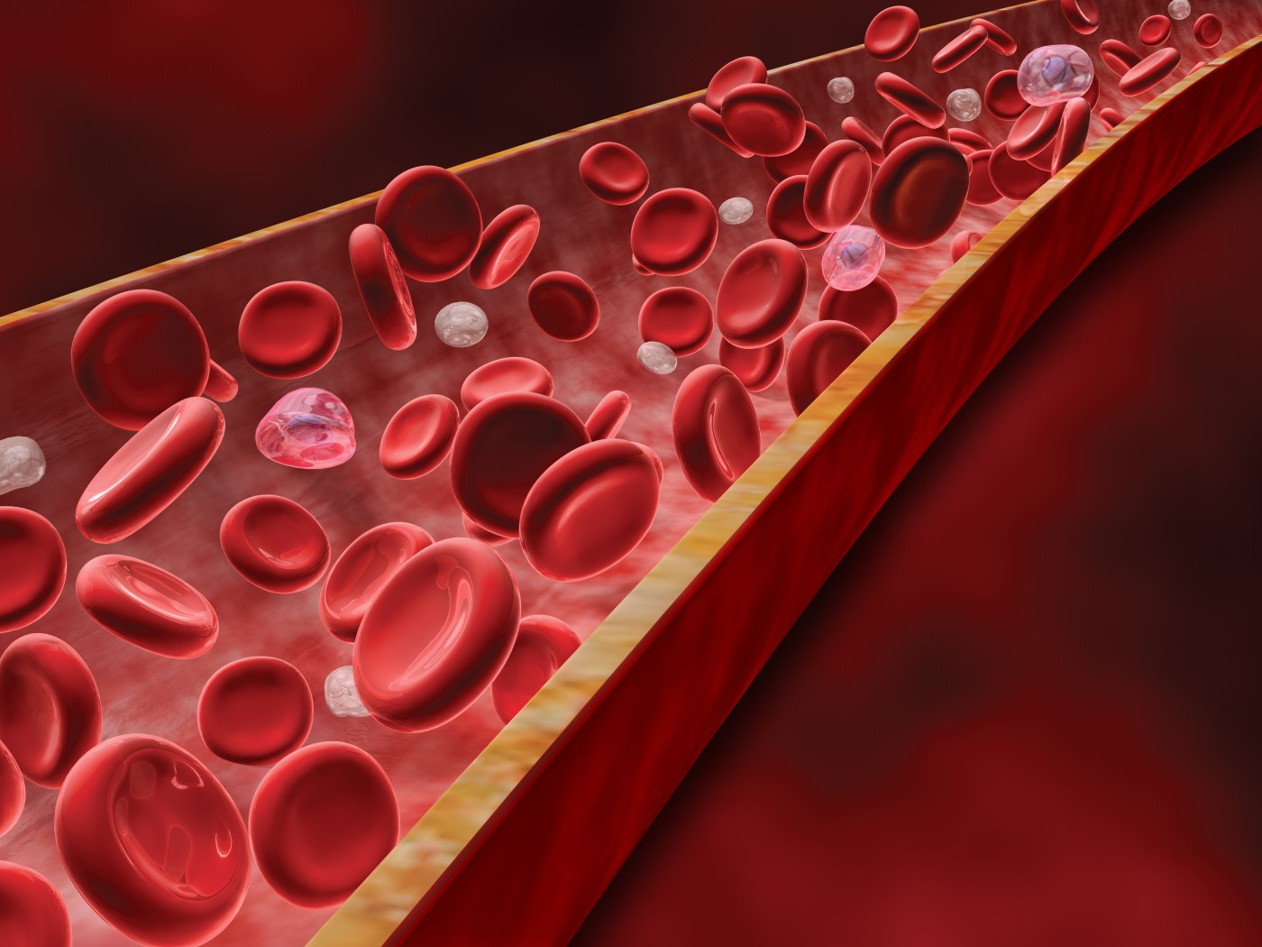 Idiopathic PAH Vasodilator Response Reflects Blood Flow Problems