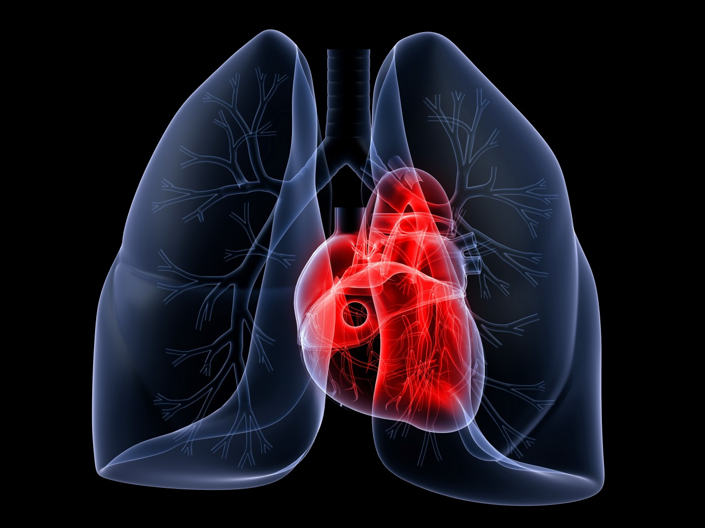 New Cellular Proliferation Protein Observed in Idiopathic Pulmonary Arterial Hypertension