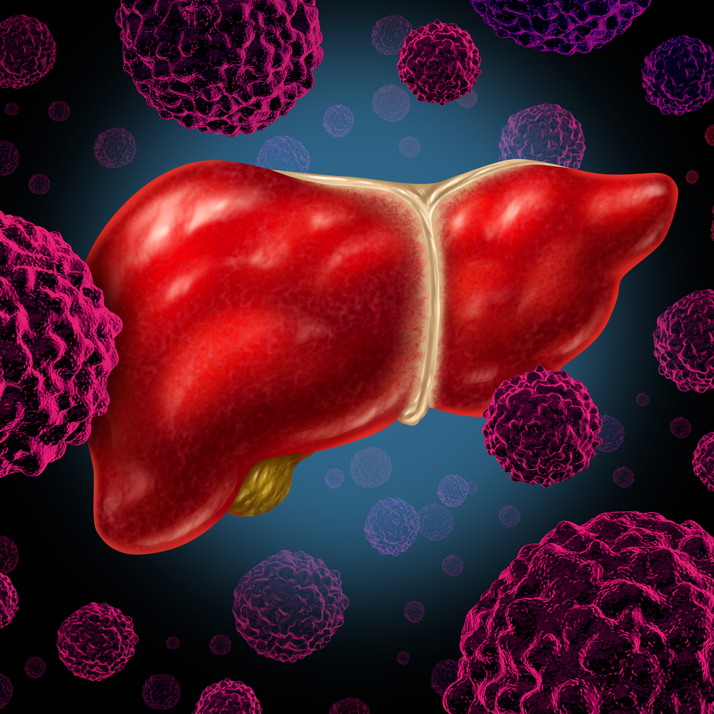 PoPHT and liver disease