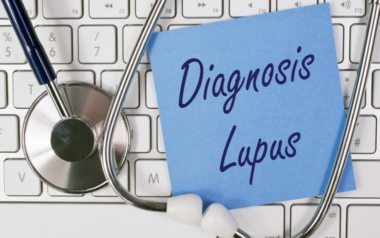 lupus and PAH
