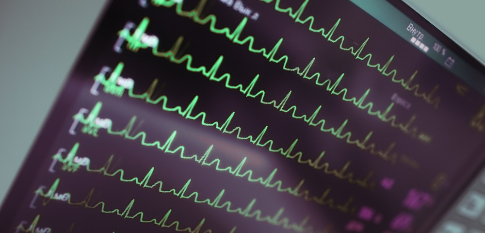 Low Cardiac Index Seen to Predict Sleep Disordered Breathing in CTEPH Patients