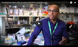 stem cells lung diseases