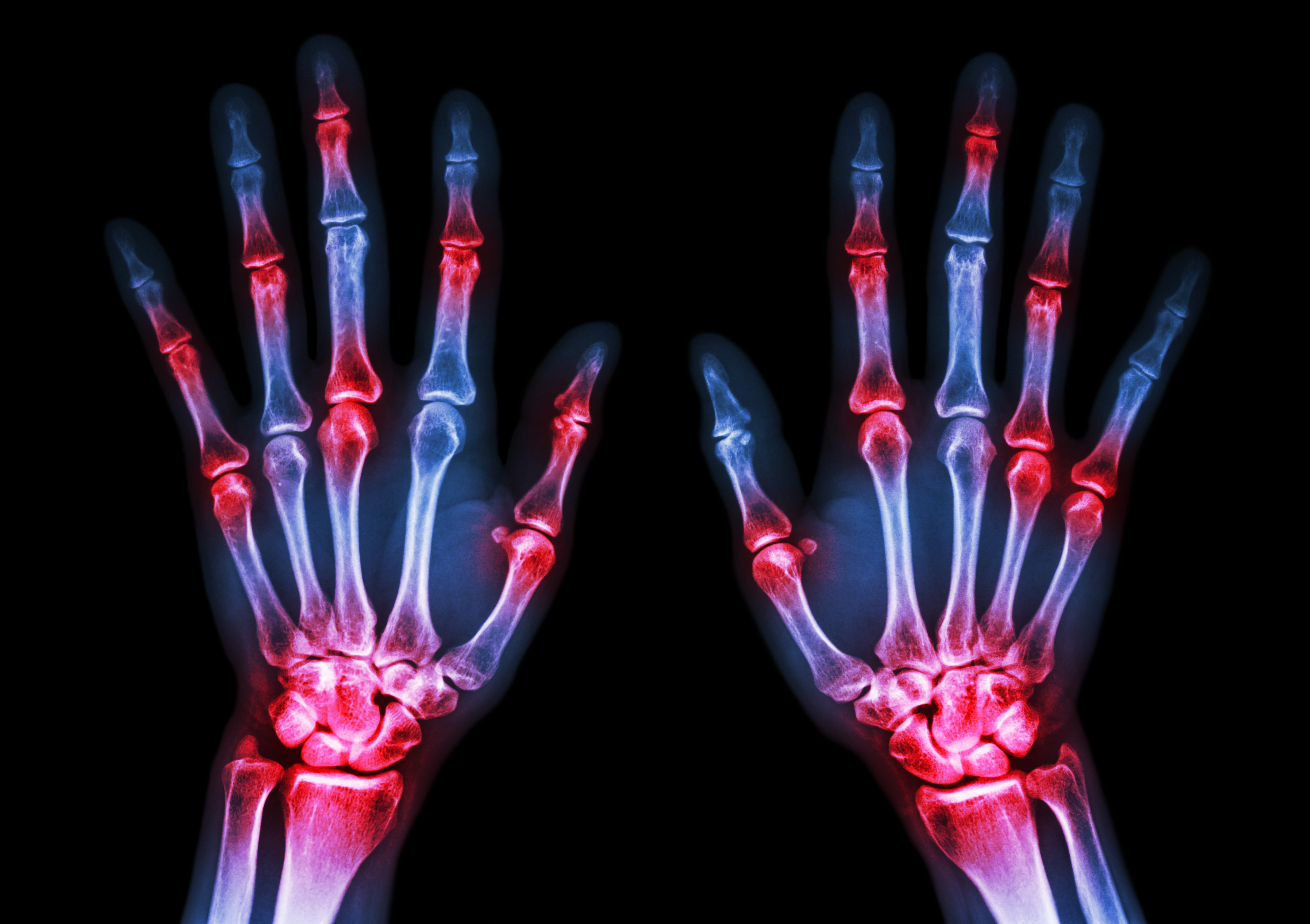 Rheumatoid arthritis patients might be at increased risk for PAH, suggesting that screening might be necessary also in this patient group.