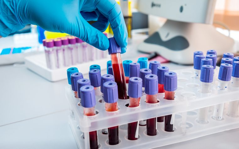 β-thalassemia Patients at Risk for PAH Show Improvements on Tracleer, Case Report Says