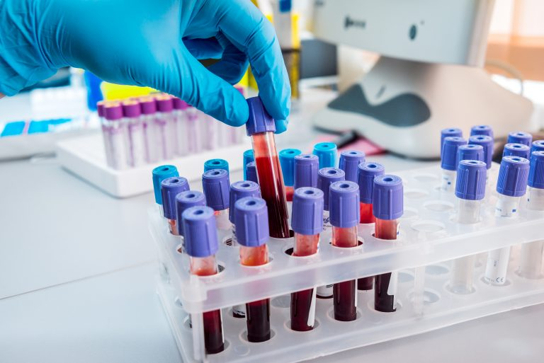 A newly developed method shows that levels of a lung-derived growth factor predict severity of PAH, opening up for a possibility of a blood test for diagnosis and monitoring.