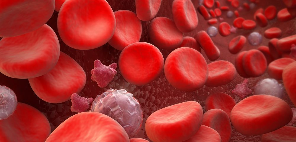 In Certain CTEPH Patients, Vascular Remodeling May Lead to Hypoxemia