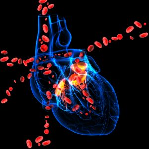 PAH and heart disease
