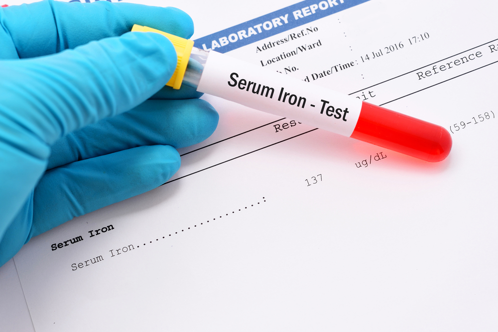 Iron deficiency and PH