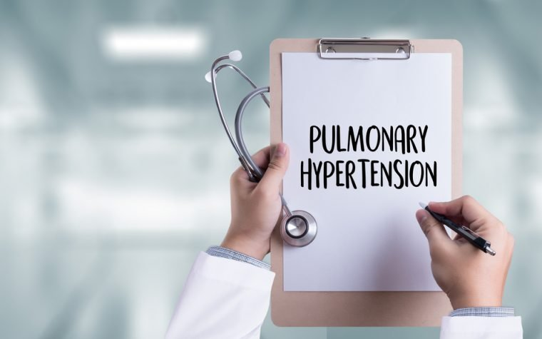 Switching to Adempas may benefit pulmonary hypertension patients with insufficient response to phosphodiesterase-5 inhibitors
