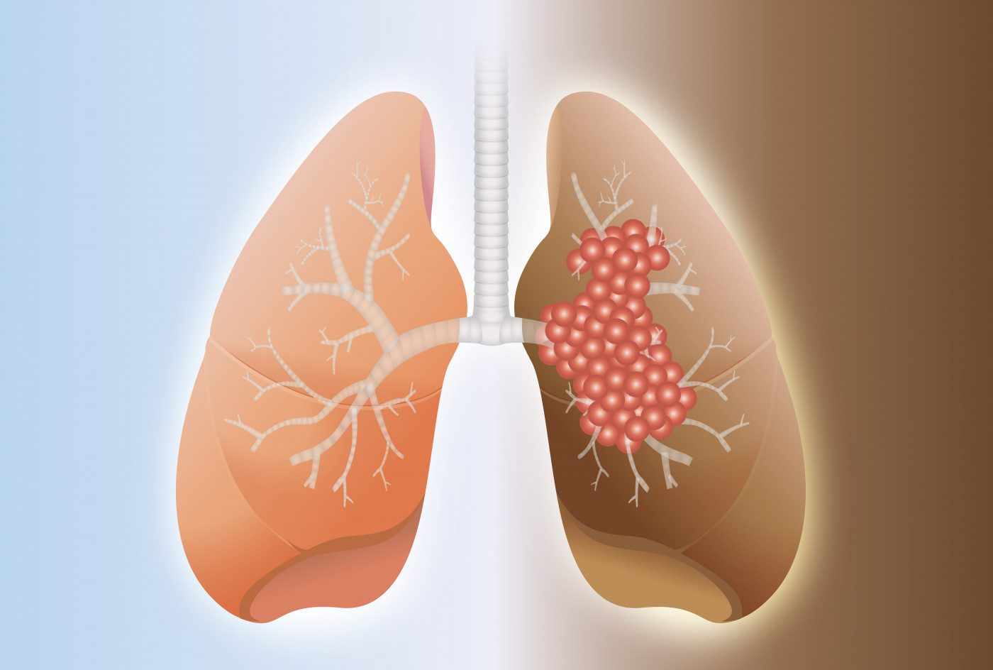 How PAH Can Develop in Advanced Lung Cancer Patients Seen in