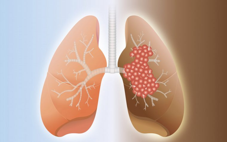 lung cancer and PAH