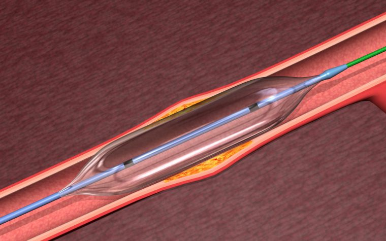 CTEPH balloon angioplasty