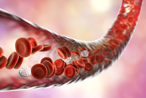 Arterial Stiffness May Be Prevalent in CTEPH Patients, Small Study Suggests