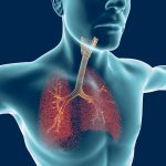 lung infections and PAH
