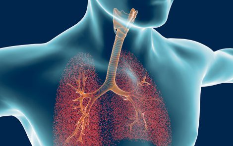 BET Proteins Could Be Therapeutic Target for COPD Patients with PH, Rat Study Suggests