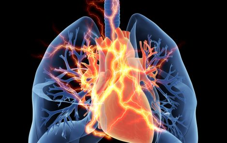 Left Heart Dysfunction Plays Key Role in Severe PAH, Study Suggests