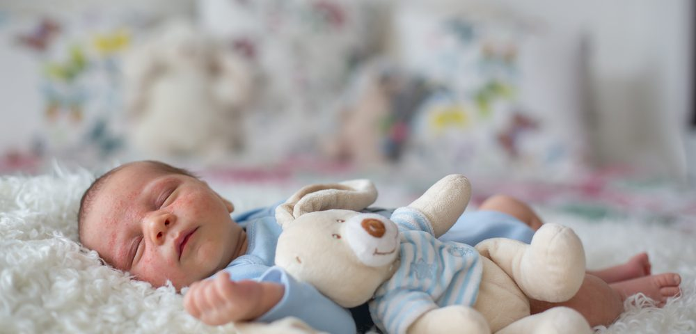 High Mortality Rates Found for Premature Babies With BPD-PH Despite Therapies