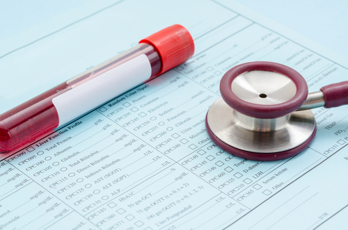 IGFBP2 Protein May Be New Biomarker for PAH, Study Suggests