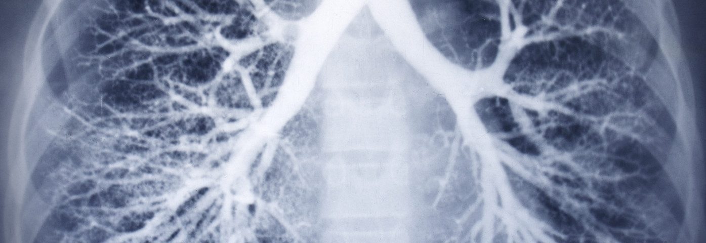 ERN-LUNG Project Helping People With Rare Lung Diseases