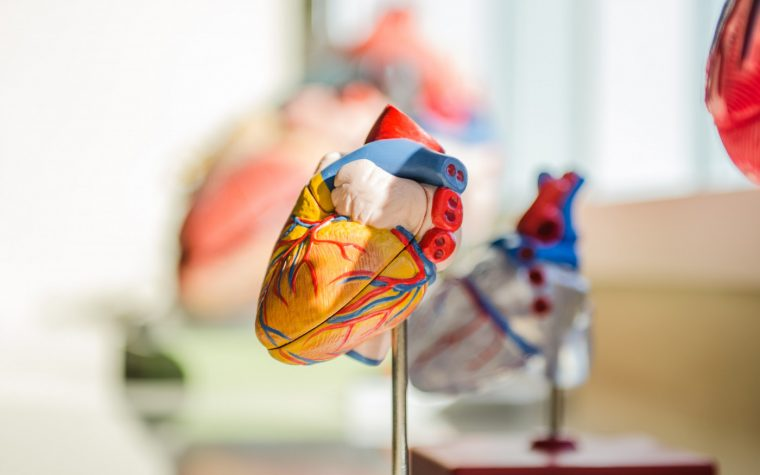 heart defect and PH