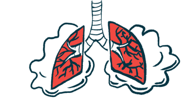 Oxygen therapy | Pulmonary Hypertension News | Illustration of lungs